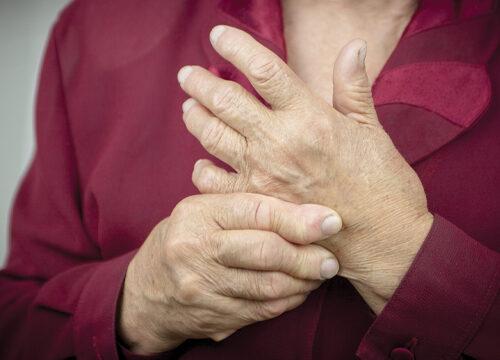 Rheumatologic Disorder