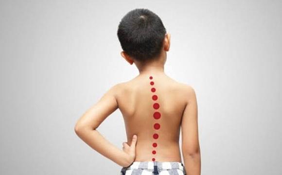 Scoliosis Rehabilitation